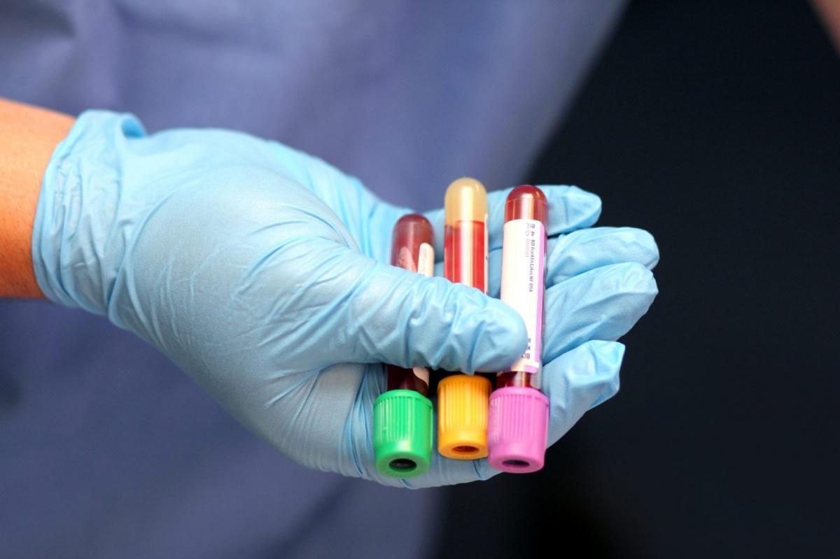 Отслеживание вирусной нагрузки при ВИЧ