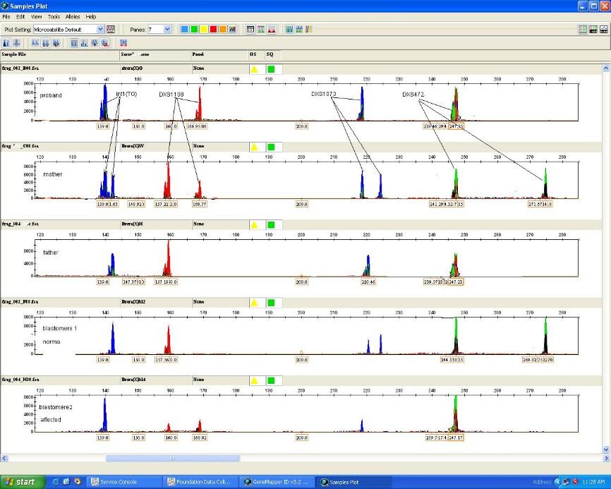 Генетическая диагностика у эмбрионов методом КФ-ПЦР