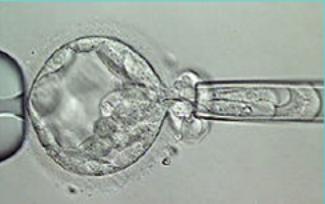 Биопсия клеток трофэктодермы у эмбриона 5 дня развития
