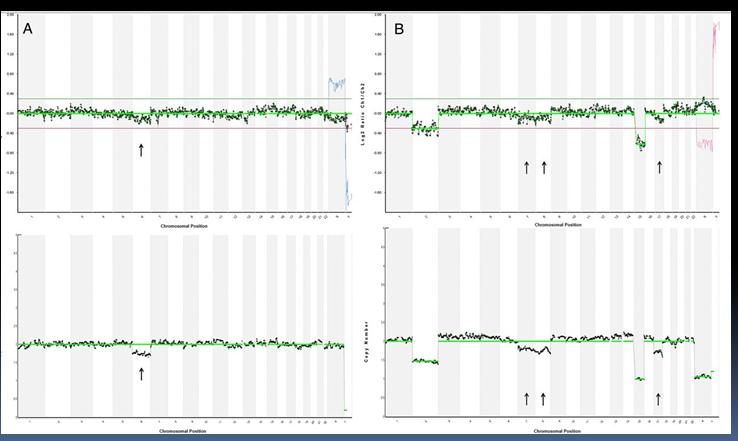 Результаты анализа, полученные с помощью метода CGH и NGS